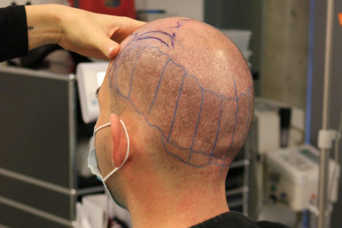 Erfahrungsbericht: Haartransplantation bei Dr. Feriduni & Heilungsverlauf