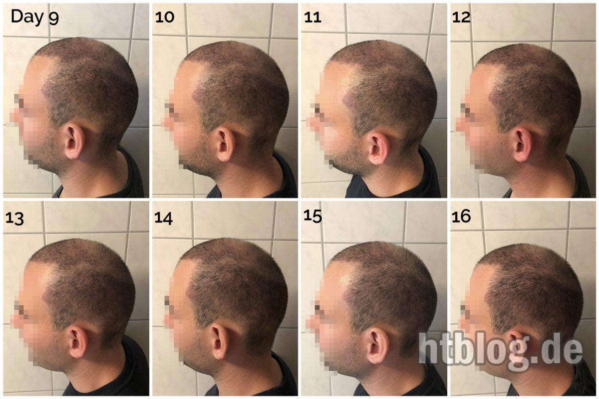 Update Tag 16: Geschäftstermin, Haarschnitt & Vergleichsfotos Tag 9-16