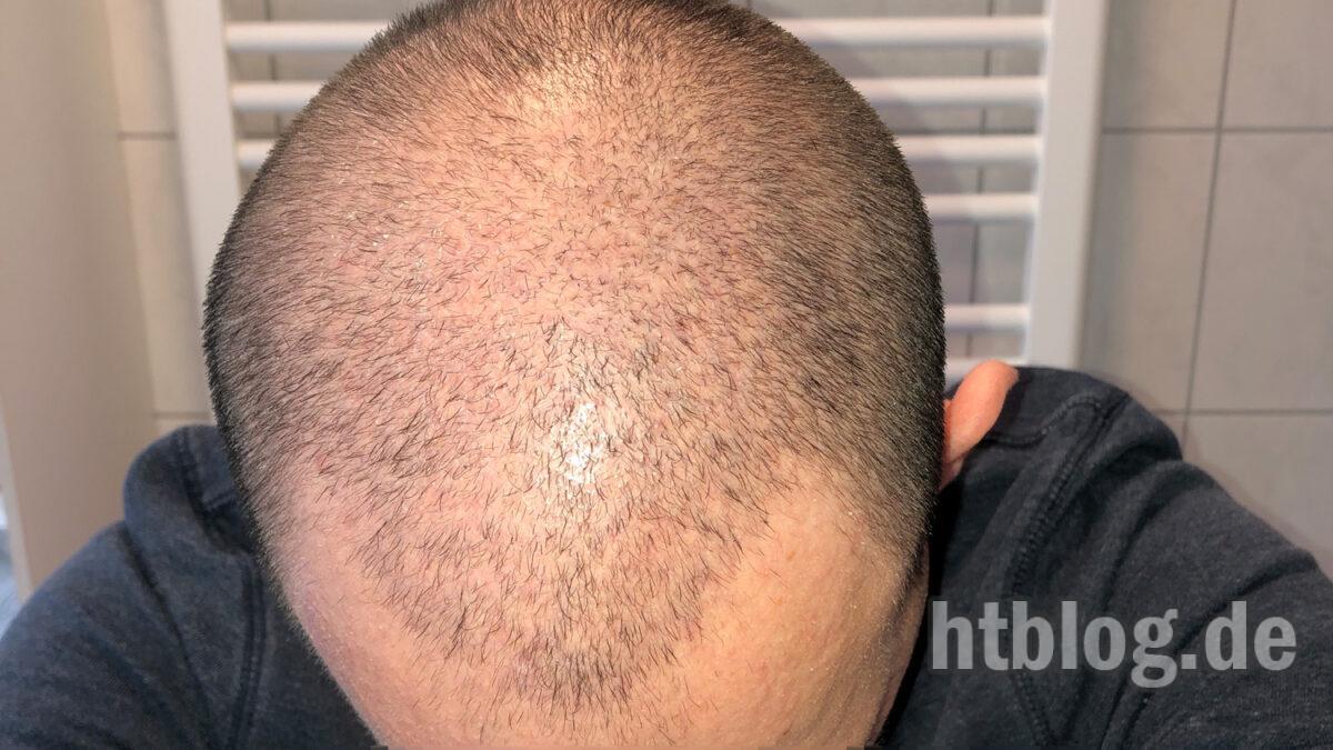 3 Monats Update: Fast alle Haare weg & getrimmt